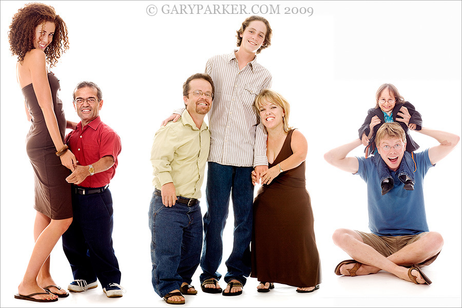 Dwarfism midget achondroplasia