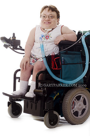 Danette Baker, has a rare type of dwarfism called Morquio Syndrome