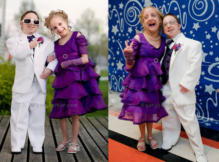 "Hannah Kritzeck with Brad Jordan. Primordial Dwarfism, dressed for Brad's senior prom in 2009. Brad is 3'2.5""/35 lbs while Hannah is 3'3""/30 lbs."