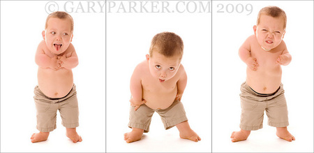How to diagnose dwarfism in babies